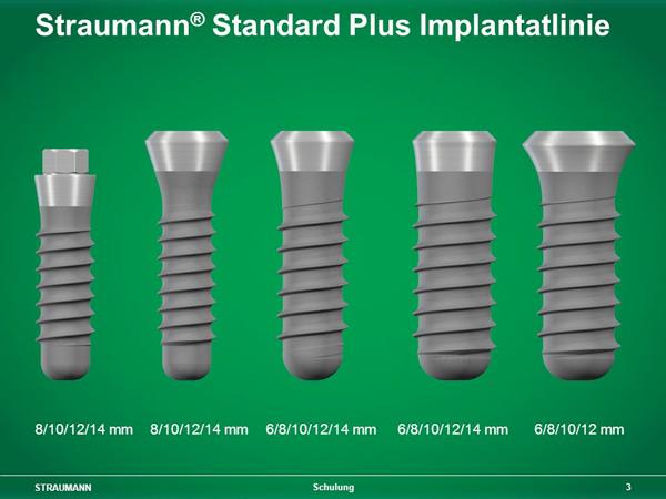 implantaten kostprijs