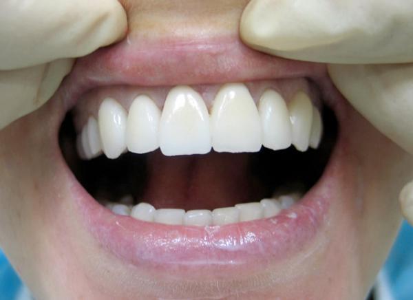 У человека слишком тонкий слой зубной эмали