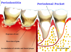 Periodenal-pocket-300x221.png