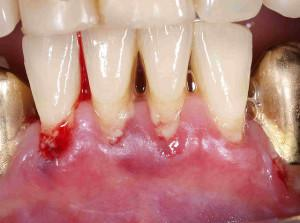 chronic-gum-disease-300x223.jpg