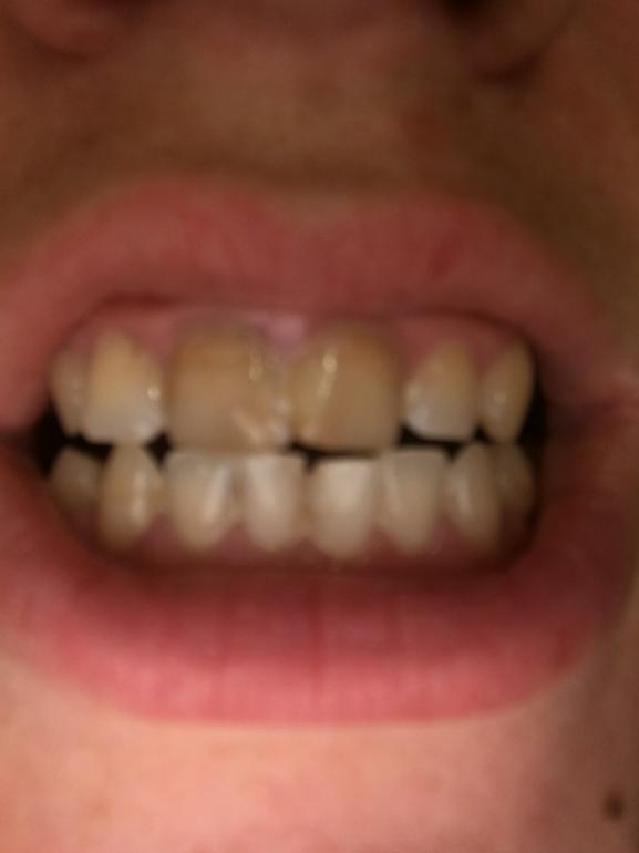 Почерневшие зубы фото