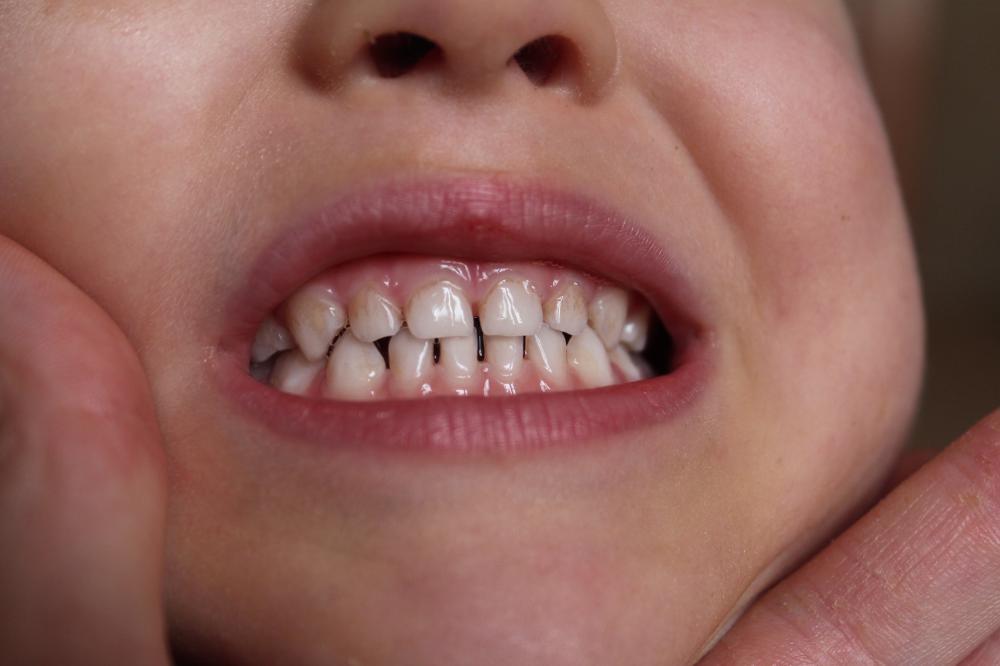 Если молочный зуб уже раскрошился