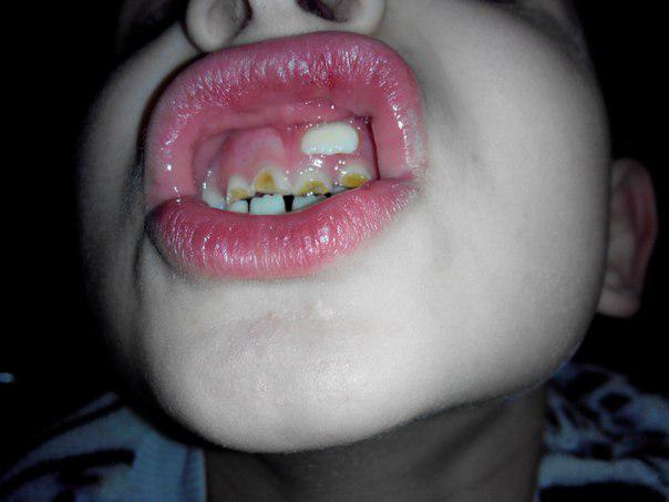 За молочными зубами растет зуб