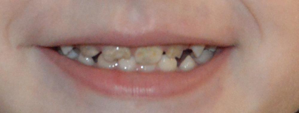 Зубы у ребенка 2 года сломался