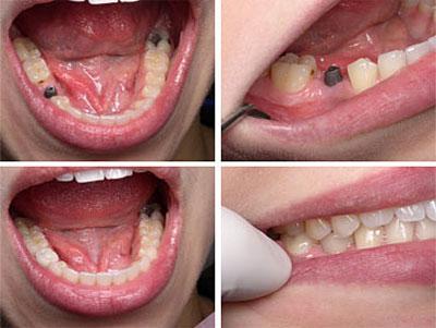 implantaciya-zubov3.jpg
