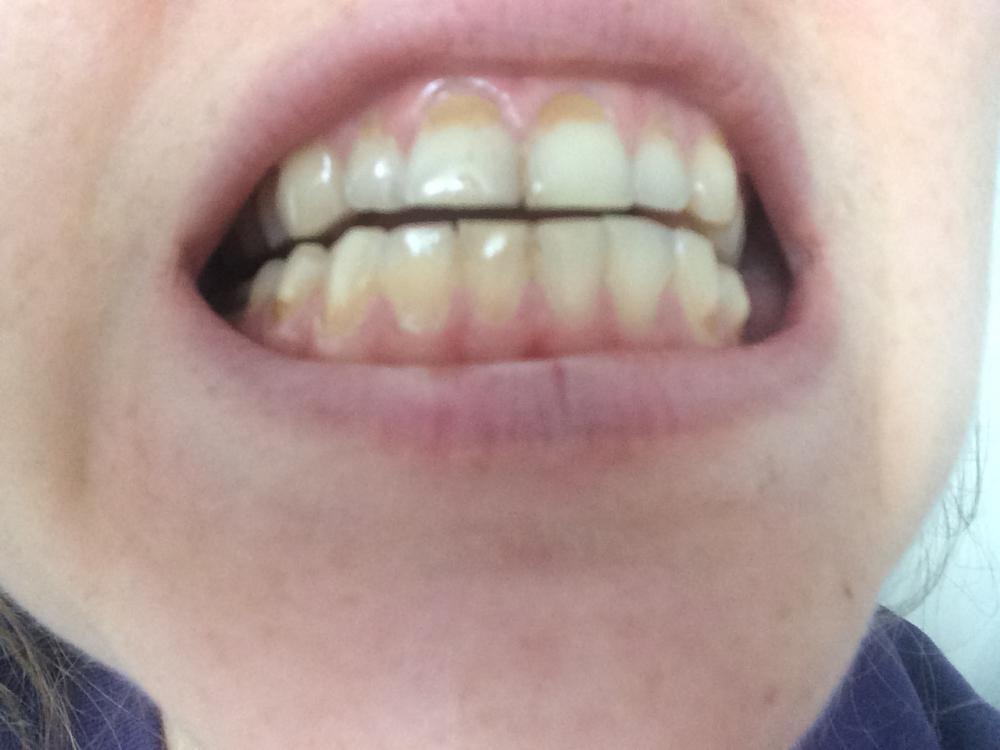 Где лутчше делать зубы в краснодаре форум фото 798-494
