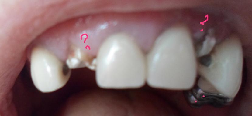 Зуб болит под коронкой ночью