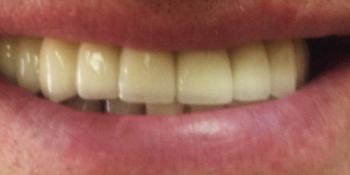 Установка 6 имплантов на верхнюю челюсть фото после имплантации
