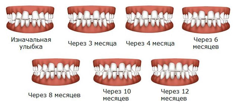 Сколько стоит выравнивание зубов элайнерами