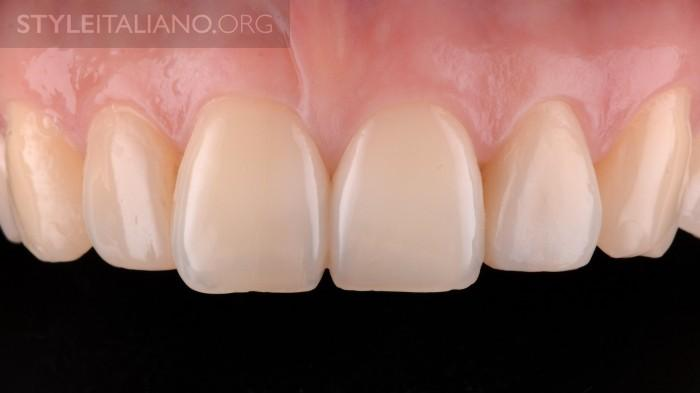 виниры на зубы пермь