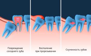 problemy-iz-za-zubov-mudrosti.png