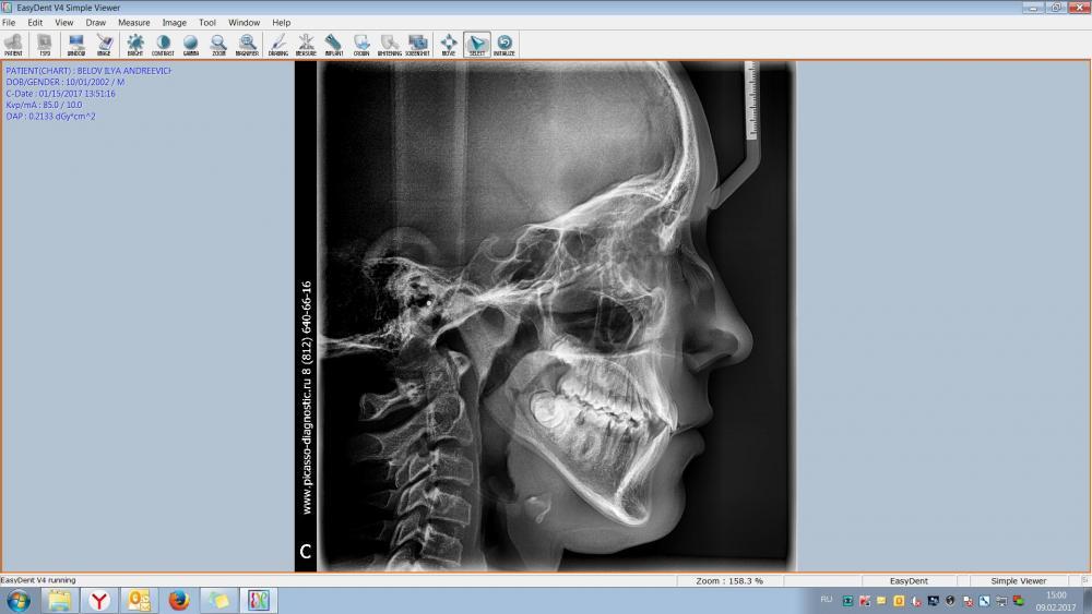 Зубы2.jpg