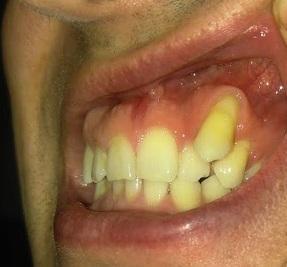 зуб.jpg
