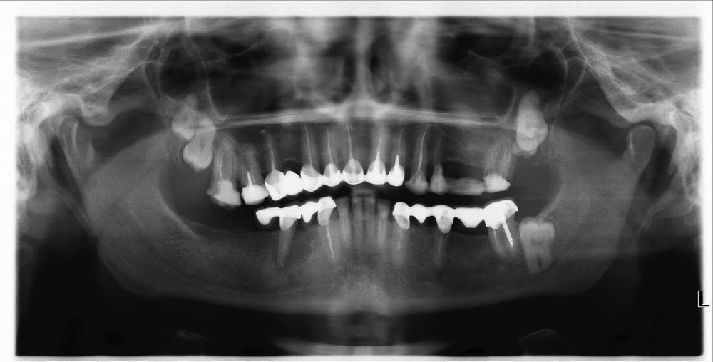снимок зубов.jpg