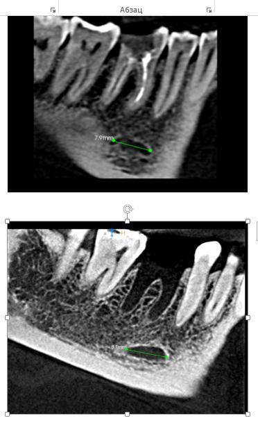 снимки до и после удаления зуба.jpg