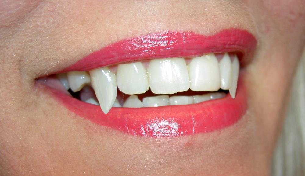 1483521079_vampire-teeth.jpg
