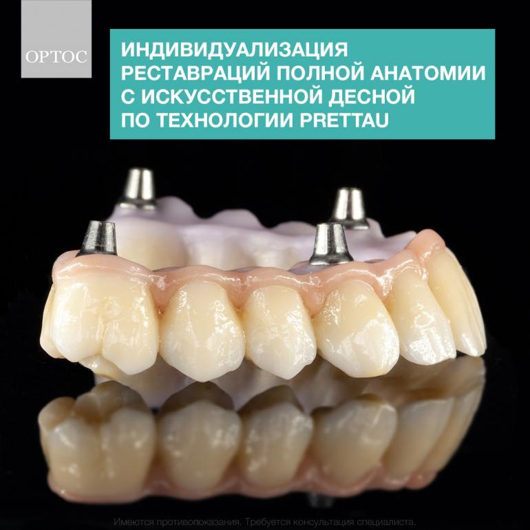 Индивидуализация-реставраций-полной-анатомии-с-искусственной-десной-по-технологии-Prettau-пост.jpg